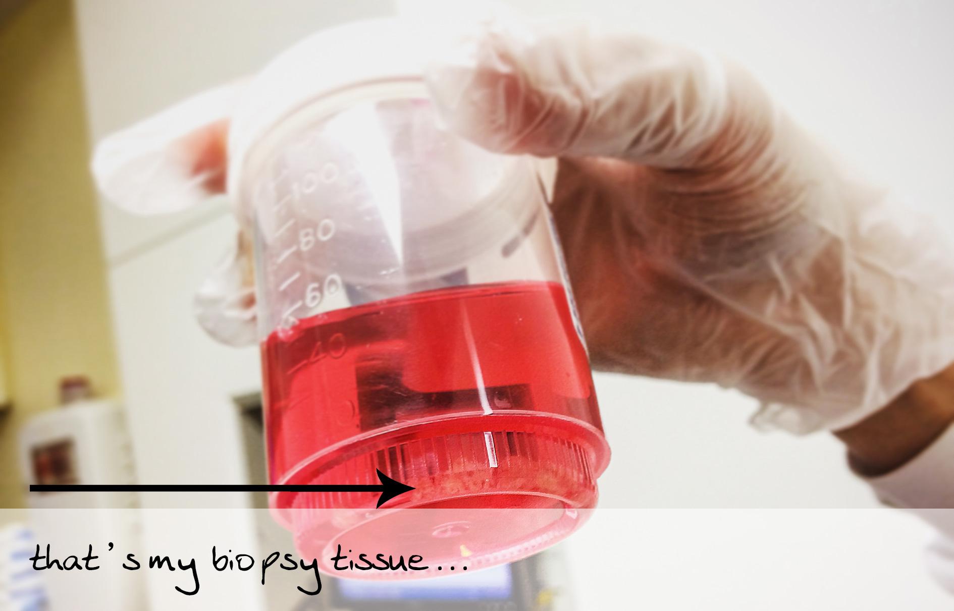 biopsy tissue